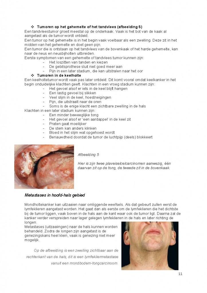 tumor in het hoofd symptomen