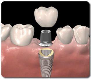 implantaat_voor_de_enkeltands_vervanging_small